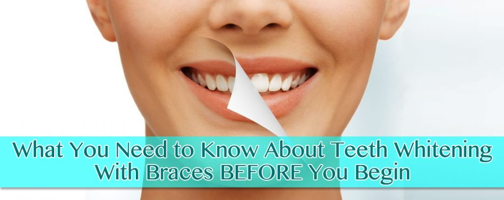 What You Need to Know About Teeth Whitening With Braces BEFORE You Begin