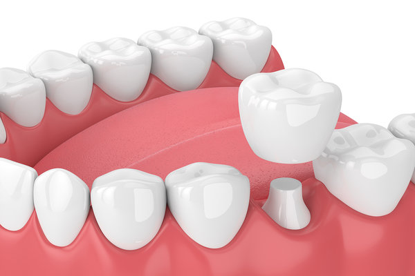 What is a Dental Crown and When Might You Need One?